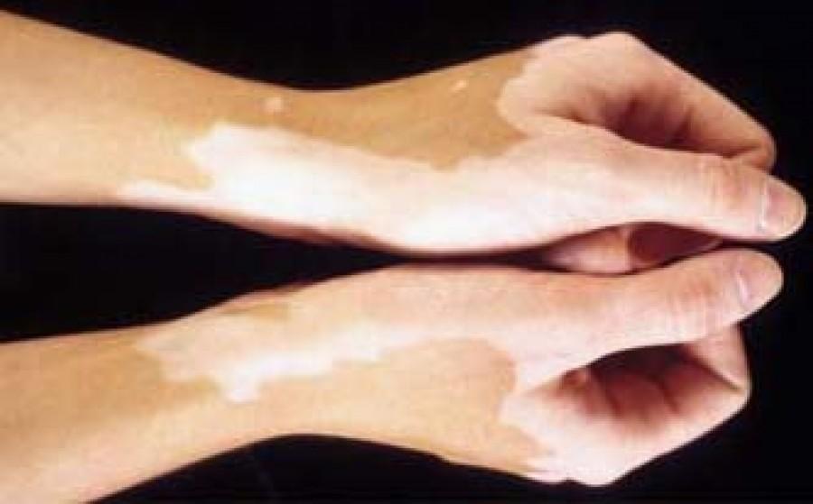 Image result for सफेद दाग